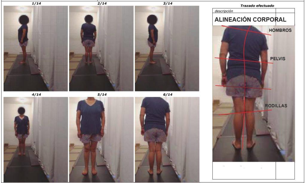 examen de alineacion postural de UltraMed