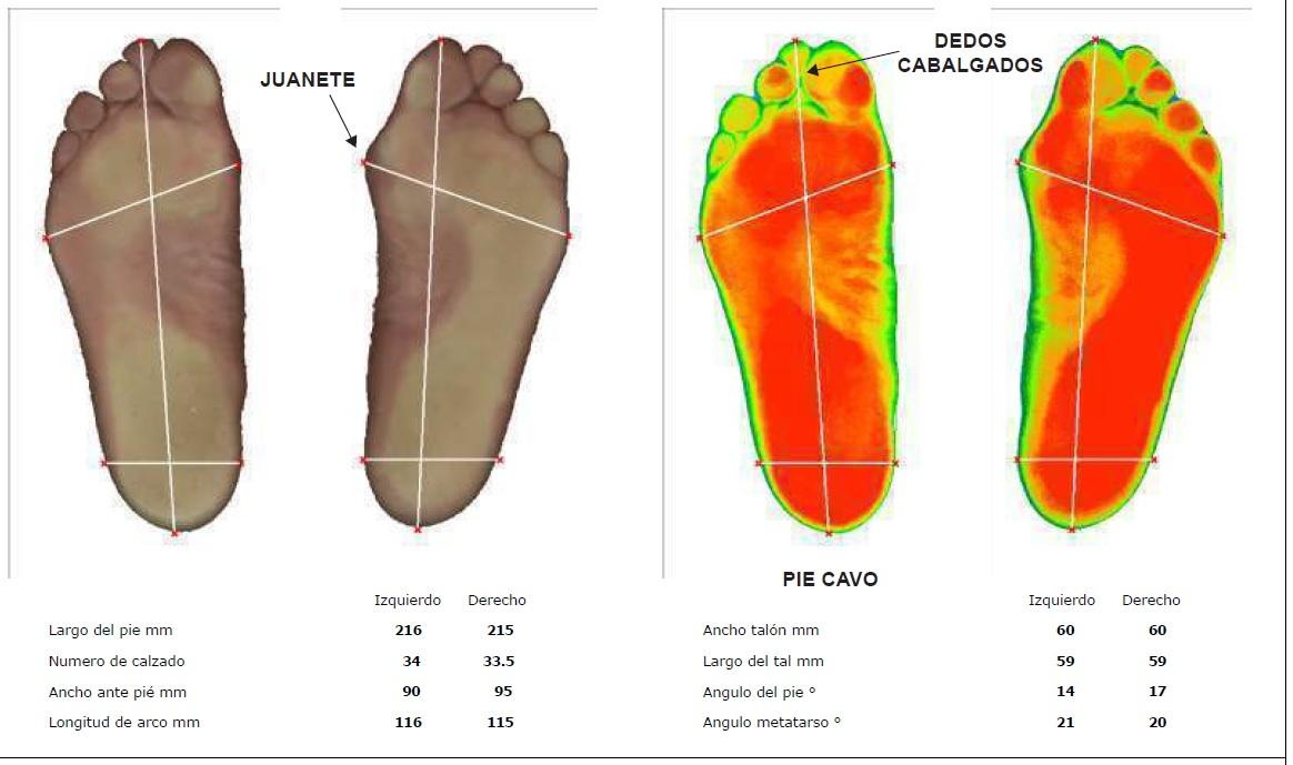 ¿Cómo se hace el estudio de plantillas ortopédicas con un baropodómetro?