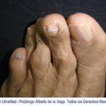 ortoplastia-trece-fresco-mexico
